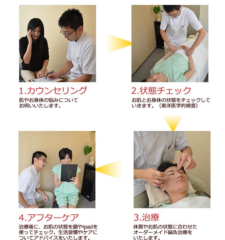 美容鍼灸の流れ