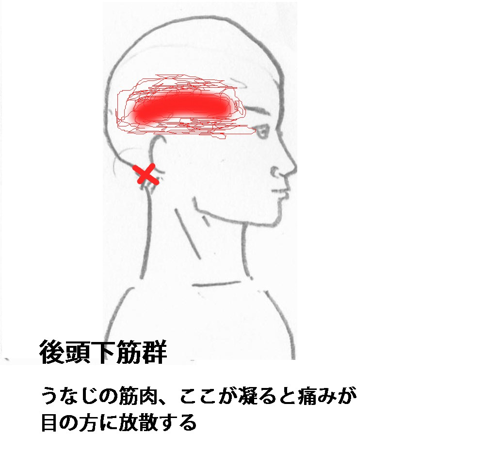頭痛後頭下筋
