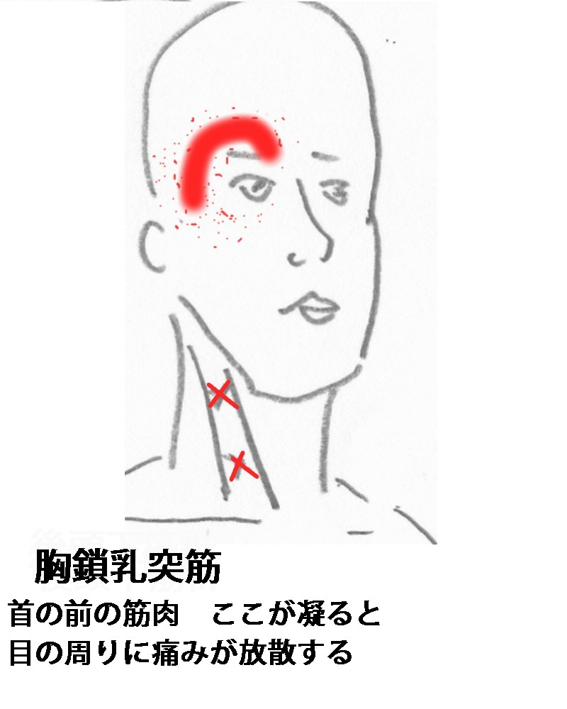 痛い 左 後頭部 が